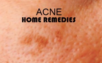 13 Home Remedies For Acne And Pimples