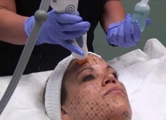 Skin-Tightening-Laser