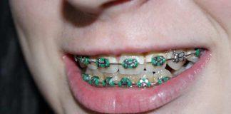 Teeth-Braces