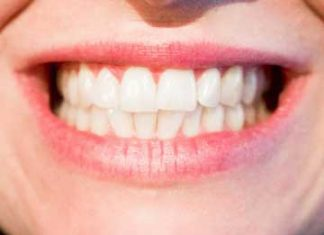 Teeth-and-Gums-Health