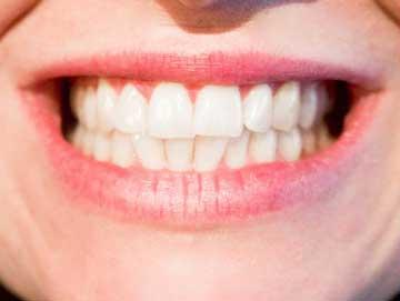Teeth-and-Gums-Health