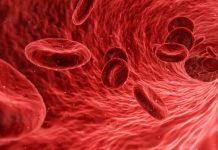 Vascular Treatment