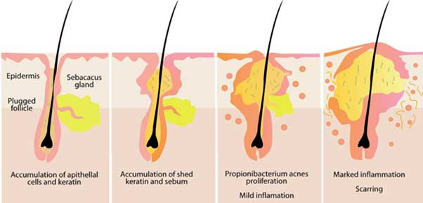 Acne & Scars – A Whole Guide to Causes and Treatments 1