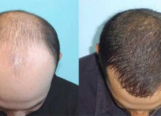 Hair Transplant To Treat Hair Loss