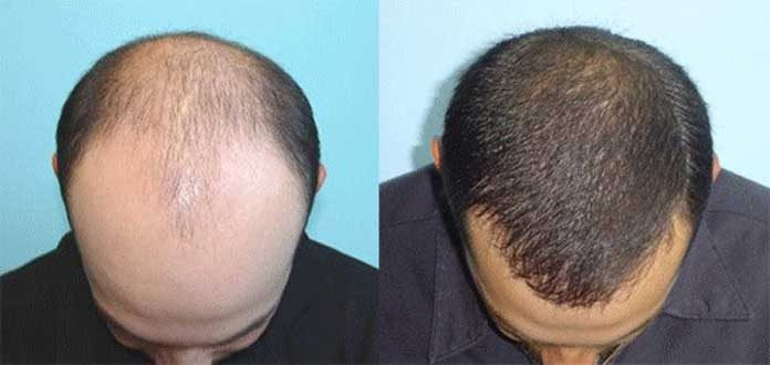 Hair Transplant To Treat Hair Loss