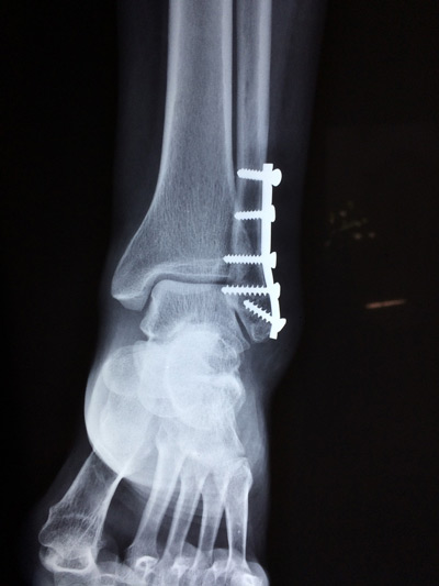 Ankle Fracture X-ray