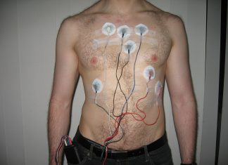 Holter Monitoring Device