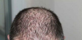 hair alopecia