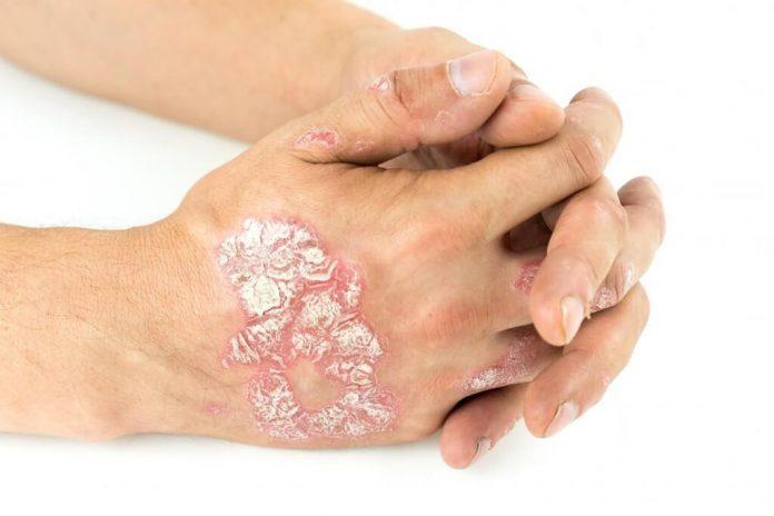 Psoriasis in hands