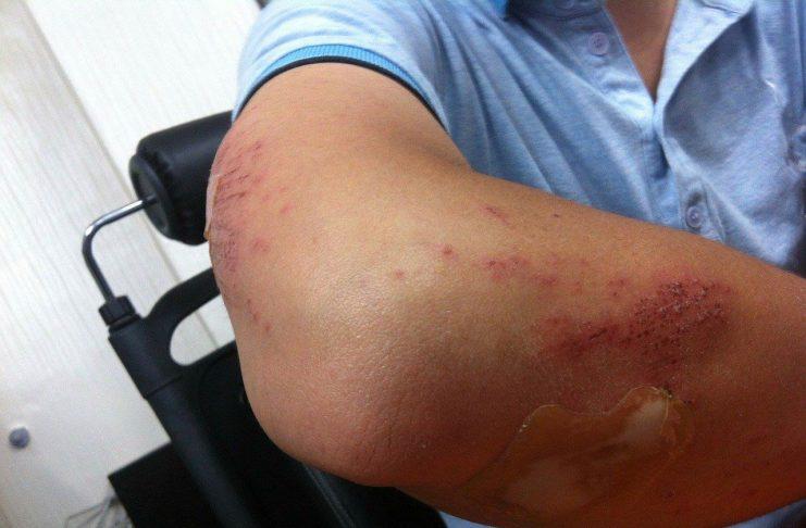 injury and bruises